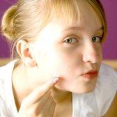 Як позбутися від прищів і вугрів на обличчі