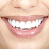 Як прибрати жовтизну на зубах